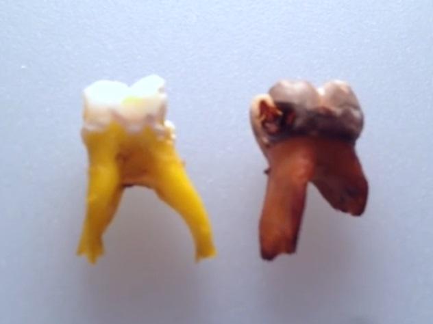 Coca-Cola растворяет даже зубы