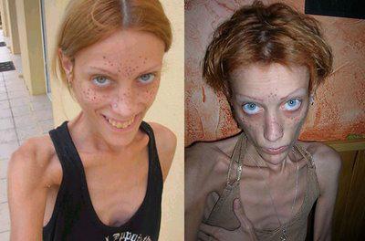 Изабель Каро умерла от анорексии