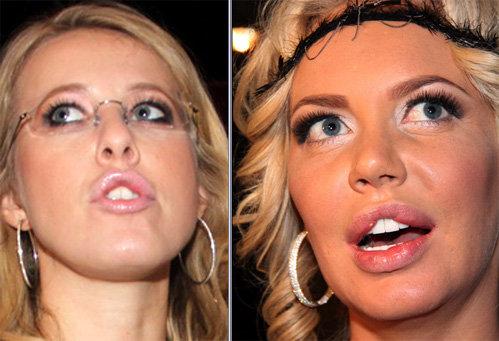 самойлова оксана фото до и после пластики