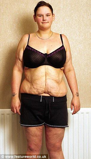 Элькар отзывы при похудении как принимать отзывы