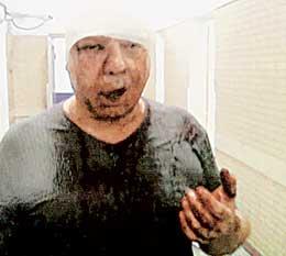 ЖЕРТВА: серьезные травмы почему-то не убедили следователей, что на Виктора было совершено нападение