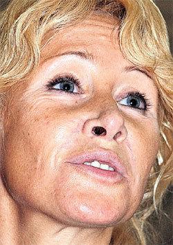За порчу лица Оксана хотела отсудить у РЫМАРЕНКО более 29 000 000 рублей