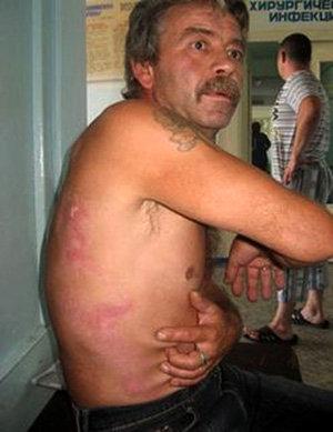 Мужчина с молнией на теле о_О - Журнал ASARATOV