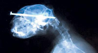 Гвоздь прошил голову кота насквозь (фото ua-reporter.com)
