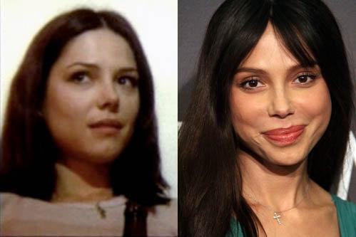 Оксана Григорьева до пластических операций (слева) и после (справа).