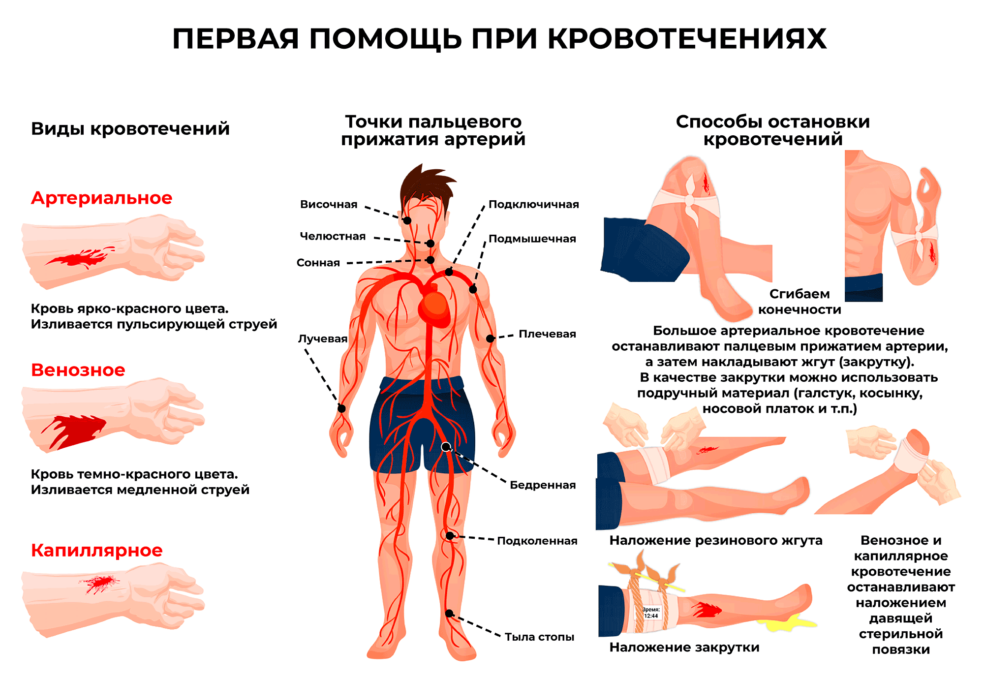 Первая помощь при кровотечениях. Инфографика